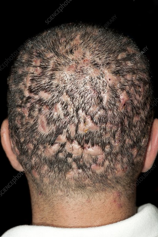 Dissecting folliculitis on the scalp
