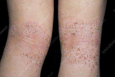 Atopic dermatitis behind the knees