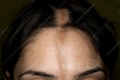 Linear scleroderma on the forehead