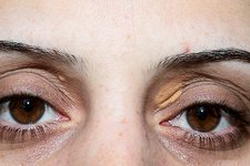 Xanthelasma on the eyelid