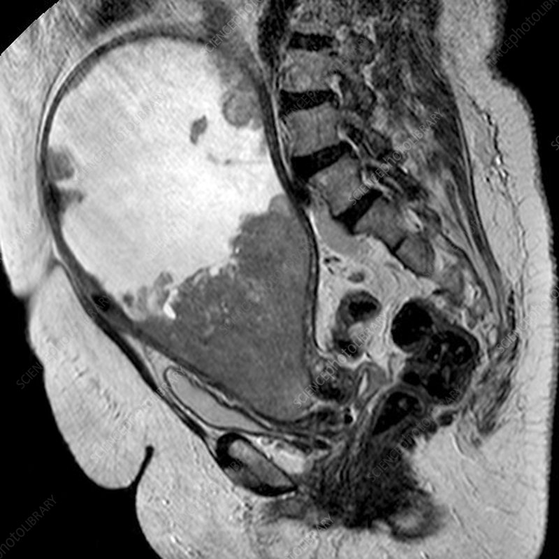 Cancer of the uterus, MRI scan