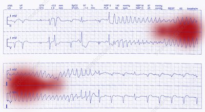 ECG trace of a heart attack