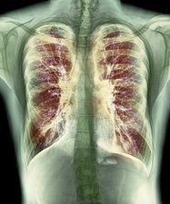 Cystic fibrosis, X-ray