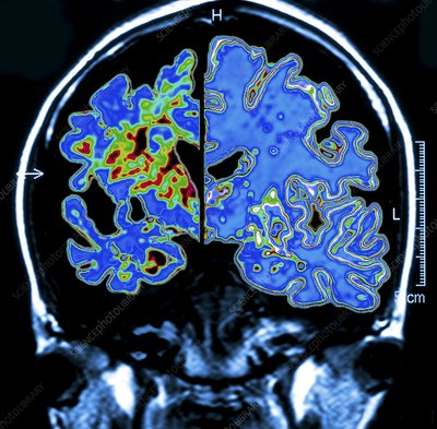 Alzheimer's brain, computer artwork