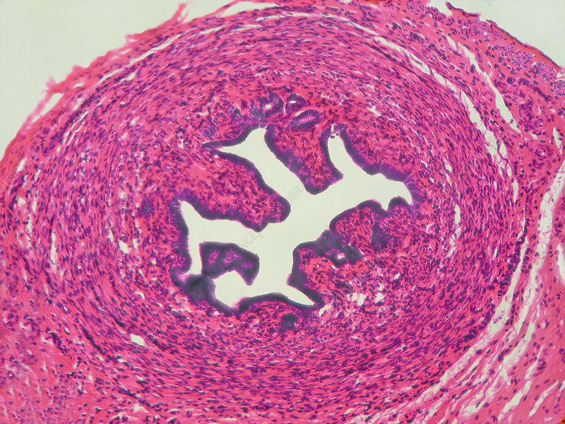 LM of Fallopian Tube