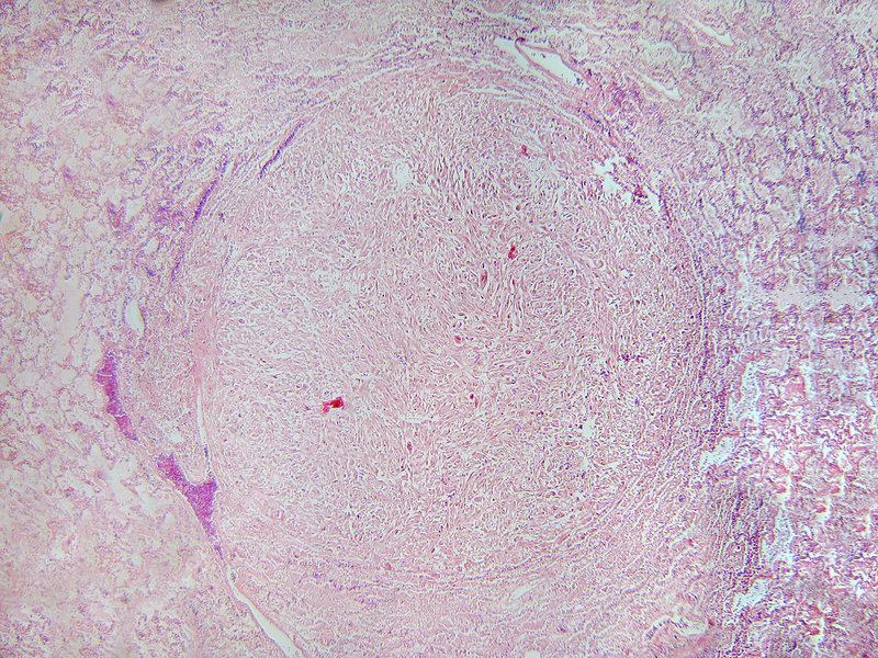 LM of Leiomyosarcoma Cancer