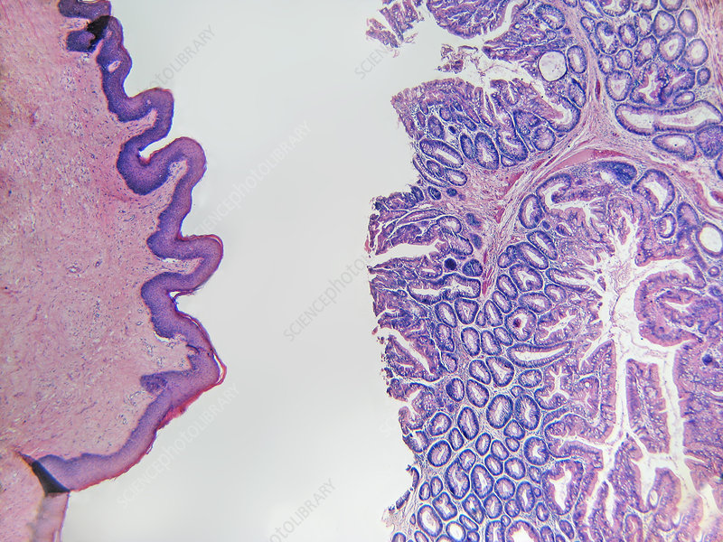 LM of Rectal Polyp