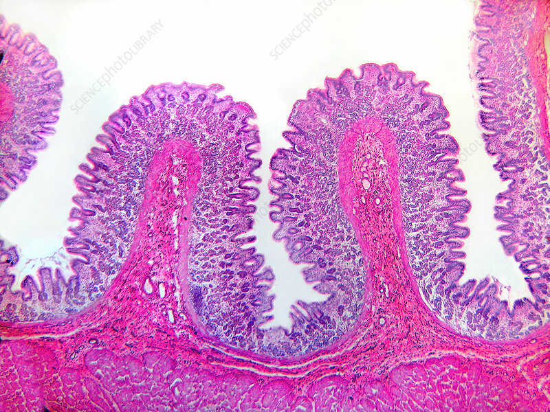 LM of Stomach Wall