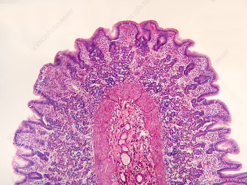 LM of Stomach