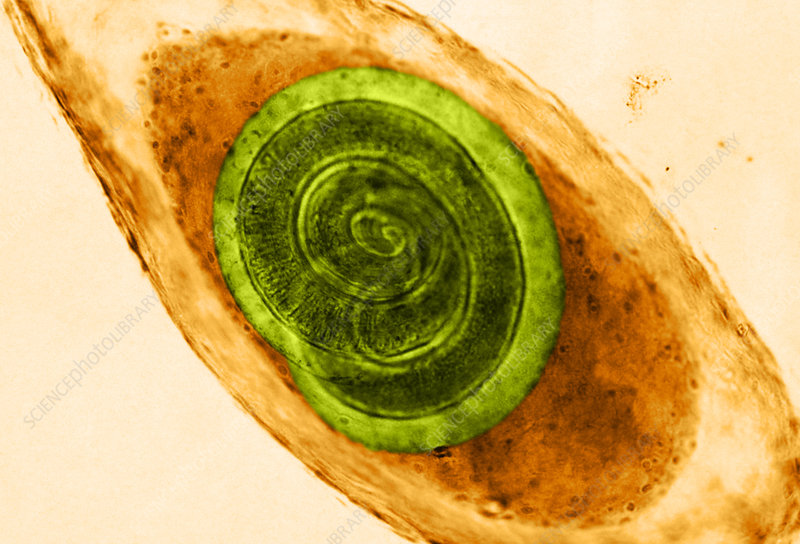 Trichinella in Muscle (LM)