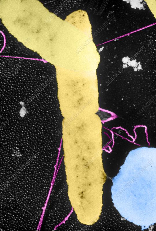 Bacterial Conjugation, TEM