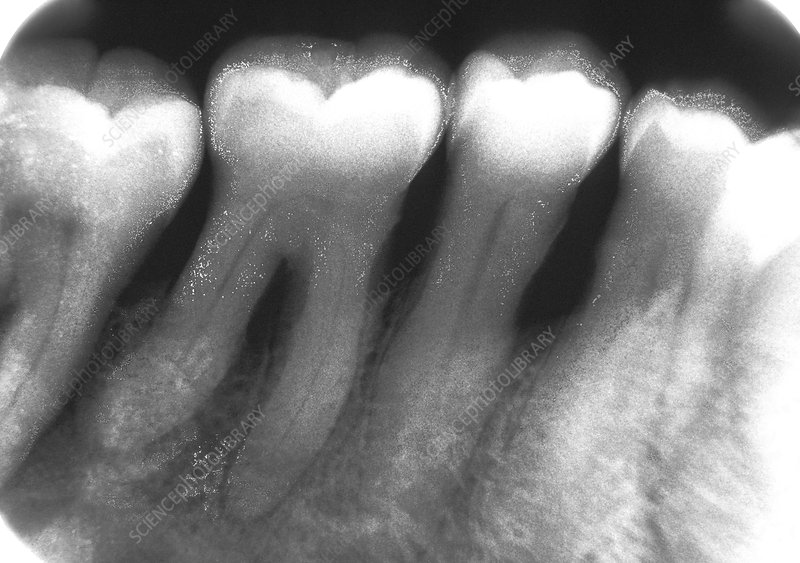 Periodontal disease, X-ray