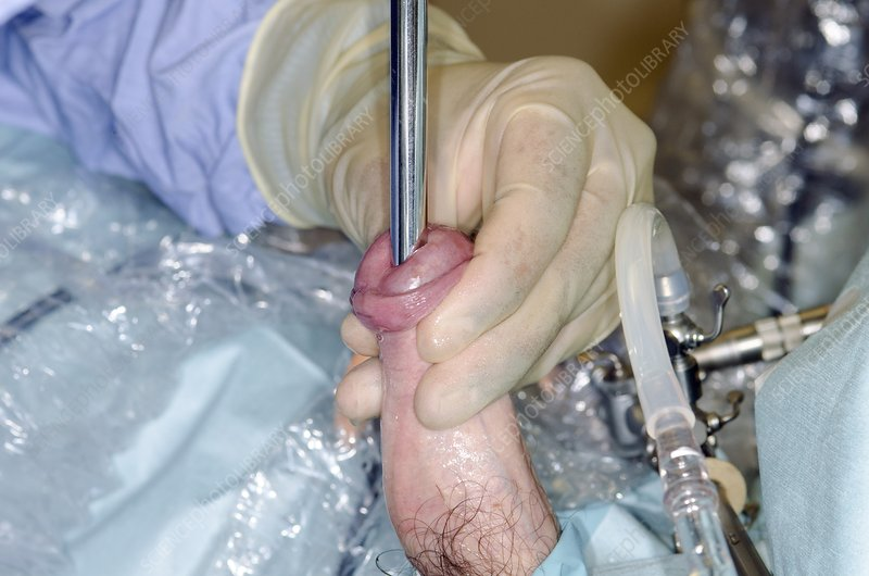 Male urethral dilation surgery