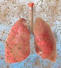 Allergen-related asthma, conceptual image