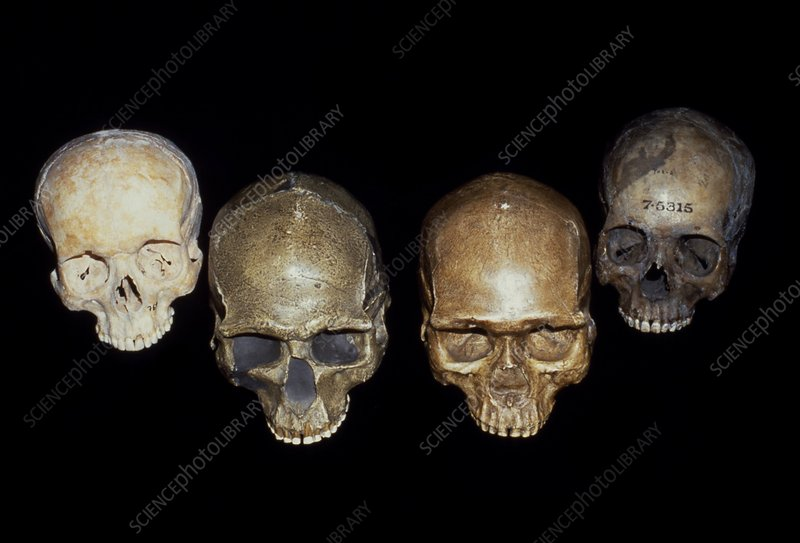 Selection of Homo sapiens skuls