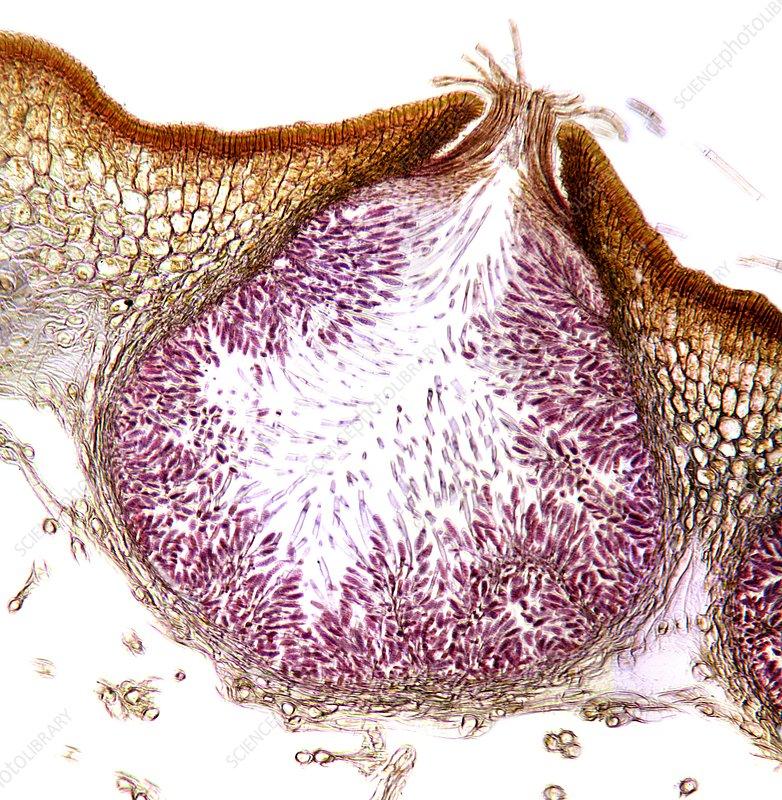 Seaweed male sex organ, micrograph - Stock Image C012/2547 ...