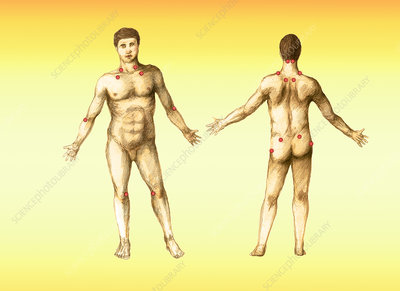 Pressure Points, Male