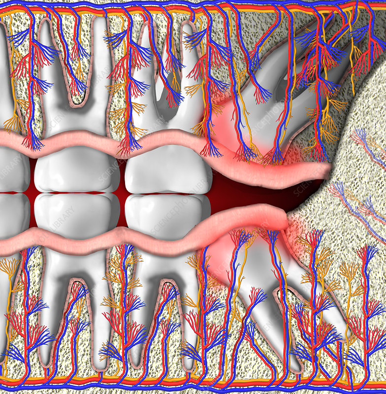 Wisdom Teeth Facial Numbness