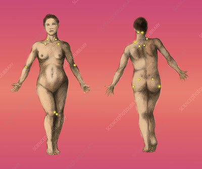 Pressure Points, Female
