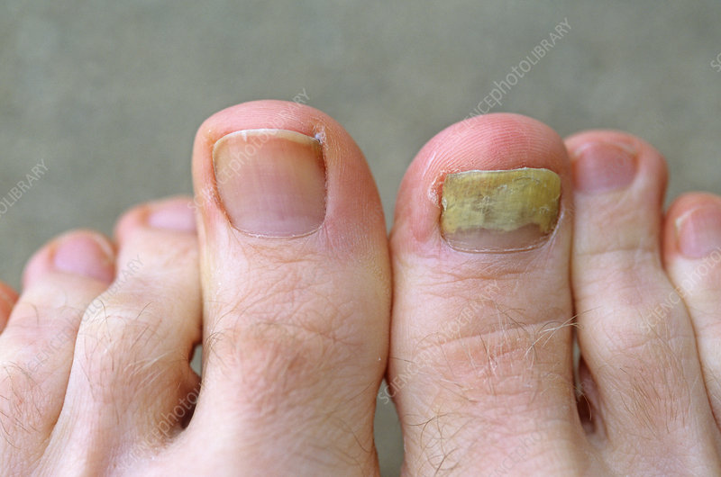 Fungus Infection on Male Toe