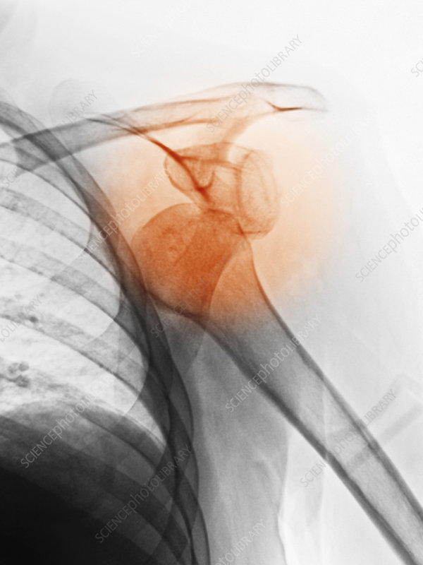 X-ray of Dislocated Shoulder