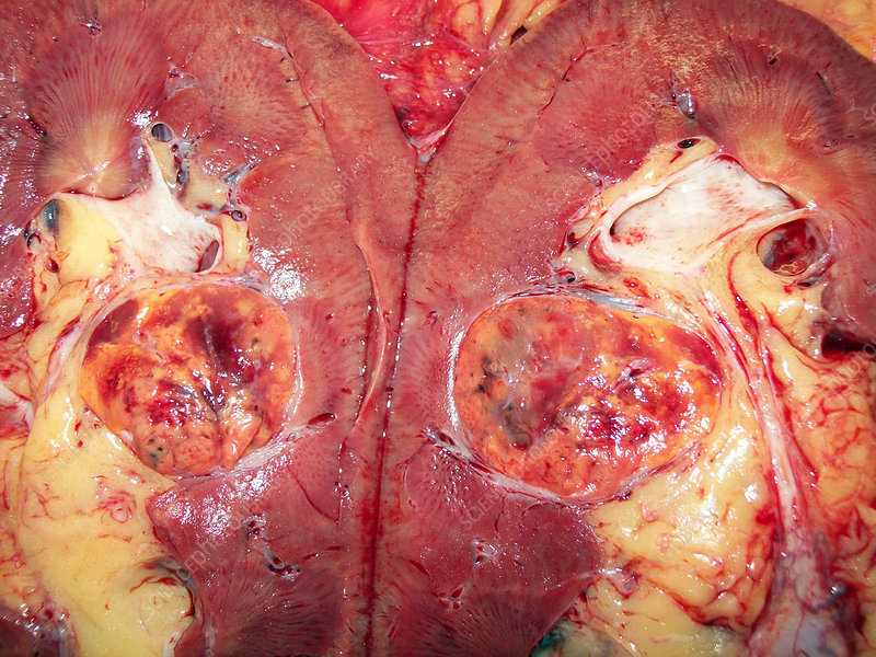 Kidney (Renal Cell Carcinoma)