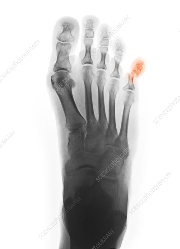 X-ray Showing Fractured Pinky Toe - Stock Image - C012 ...