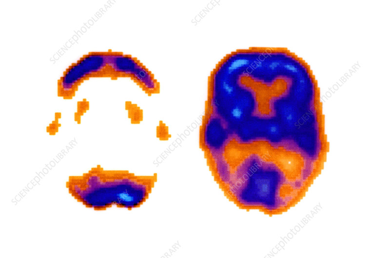 Normal and Alzheimer's Brain Scans