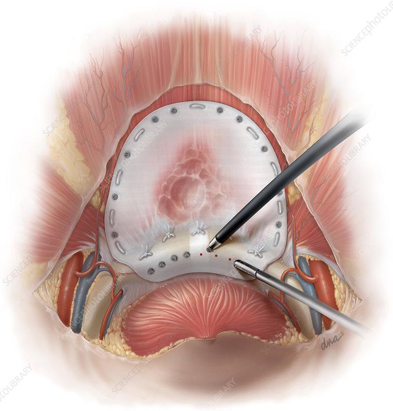 Suprapubic Laparoscopic Hernia Repair Stock Image C0124107