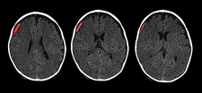 Subdural Hematoma in 6 Month Old, CT Scan