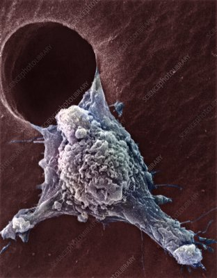 Migrating cancer cell, SEM