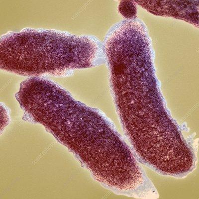 Cholera bacteria tem