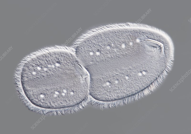 Parasitic protozoan, light micrograph