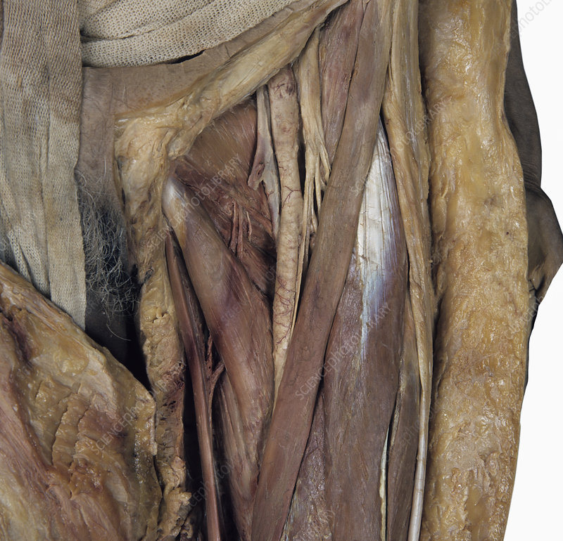 saphenous nerve cadaver | online |, Muscles