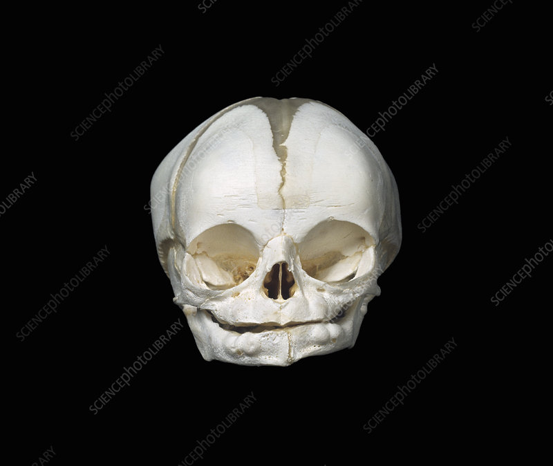 Skull of a human newborn baby - Stock Image C012/7355 - Science ...