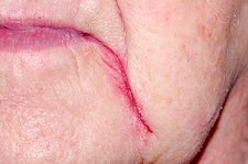 Skin cracking (cheilitis) at the mouth