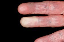 Raynaud's phenomenon of the finger