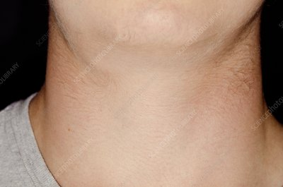 Swollen lymph gland in the neck
