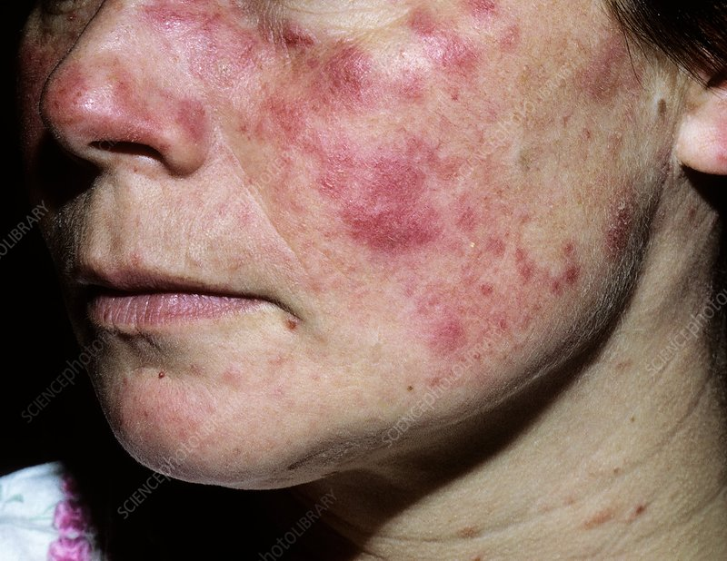 Causes of Skin Ulcers & Draining, Oozing or Crusty Lesions ...