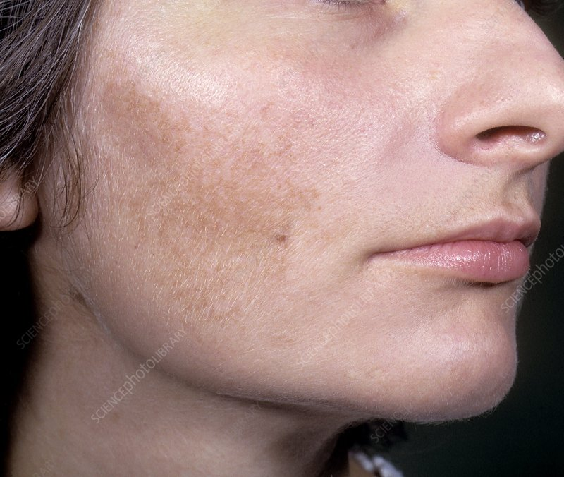 how to clear dark patch on face