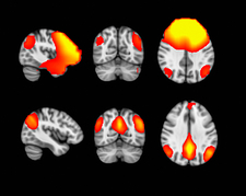 MEG and fMRI Brain Scans