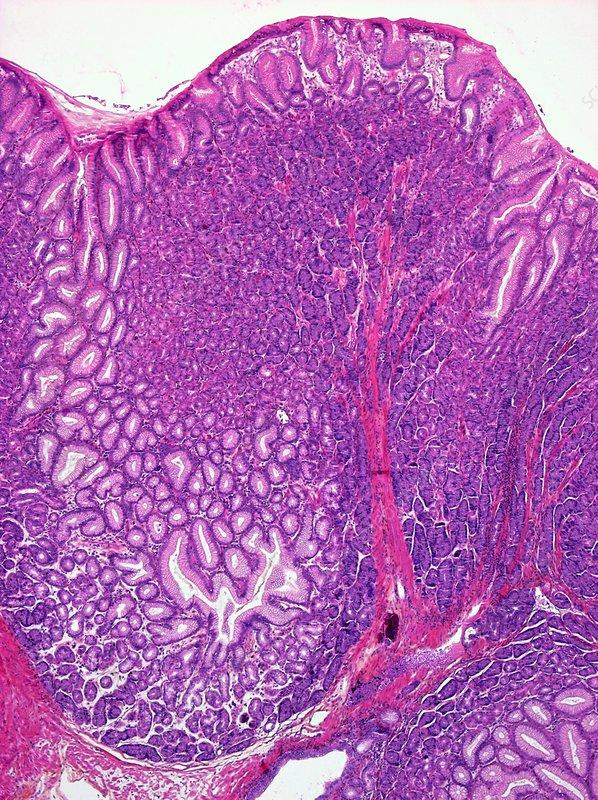 Menetrier's disease of the stomach