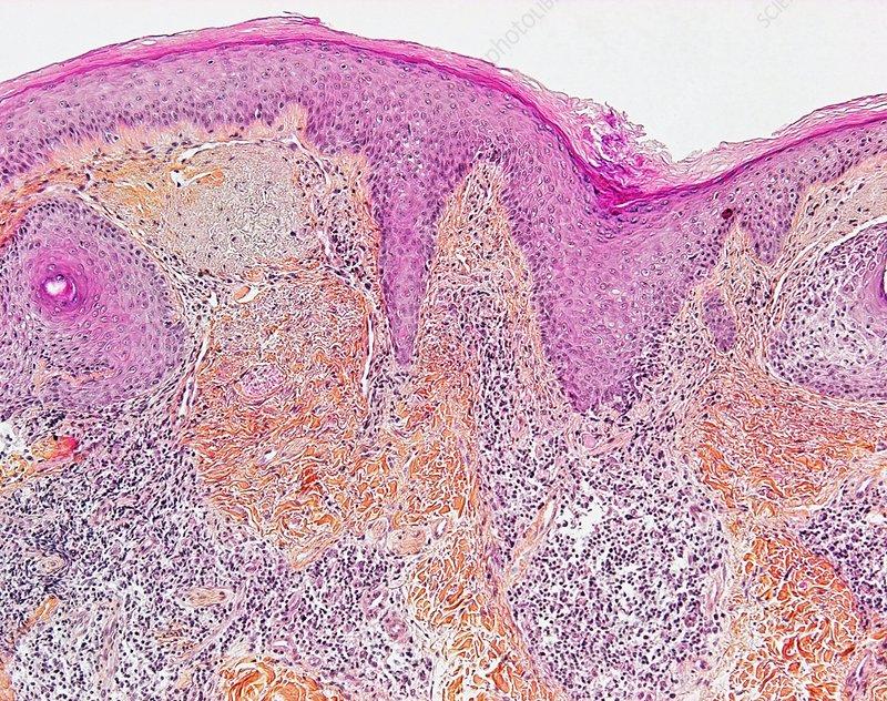 Chronic lupus erythematosus, micrograph