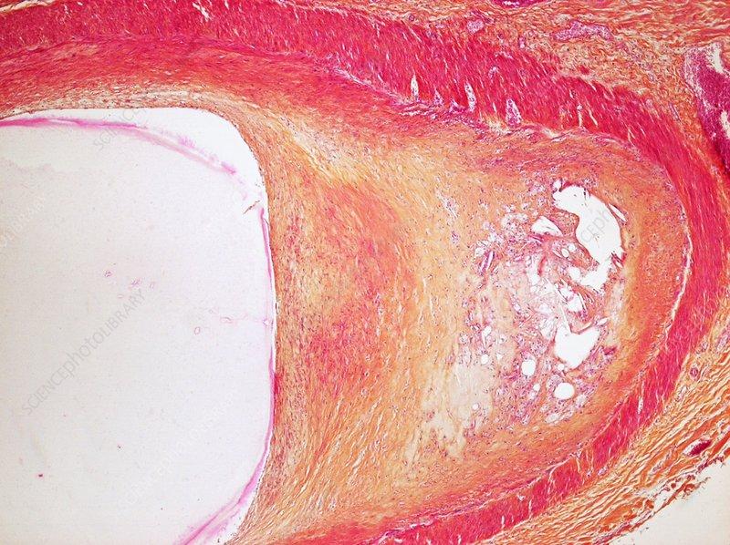 Atheroma plaque, light micrograph