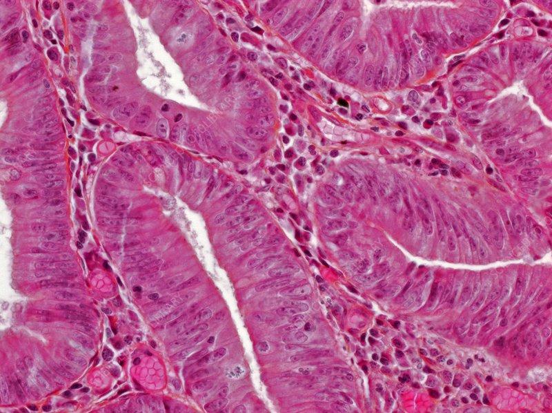 Colon adenoma, light micrograph