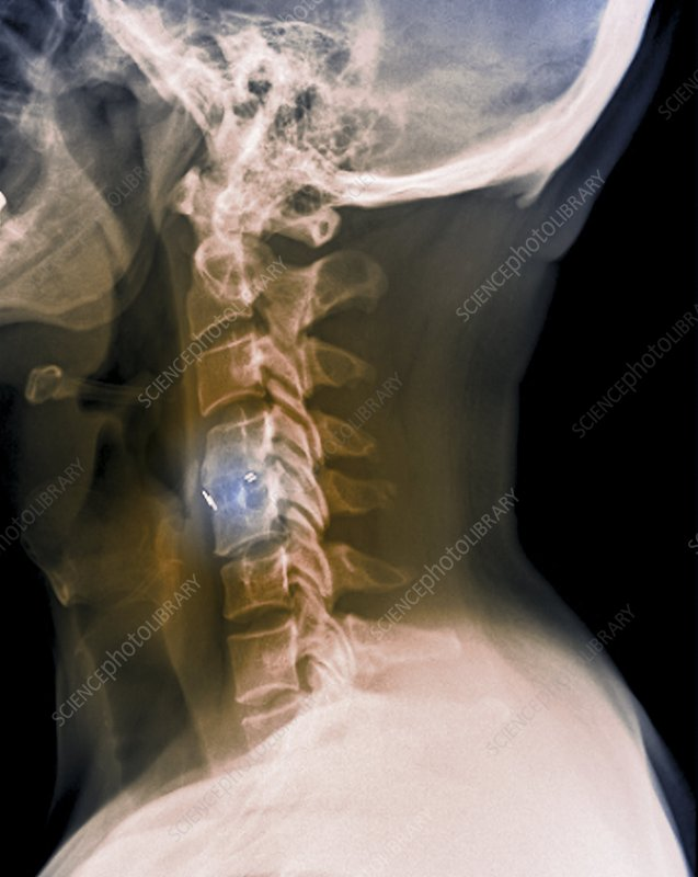 Spine fixation, X-ray
