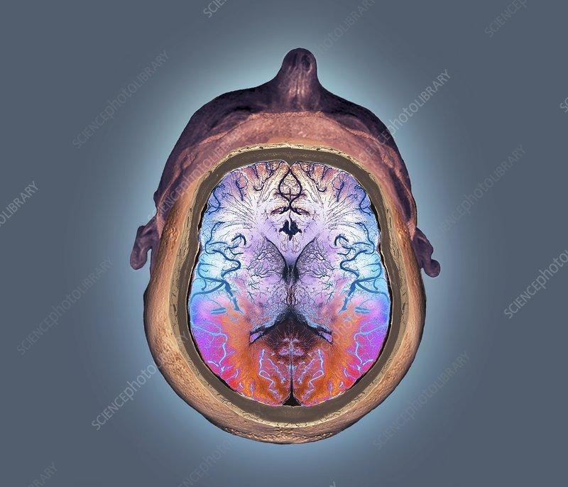 Normal brain, 3D CT angiogram