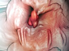 Intestinal polyp, virtual colonoscopy