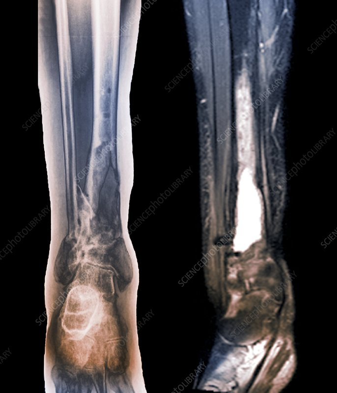 Damaged tibia, X-ray and MRI