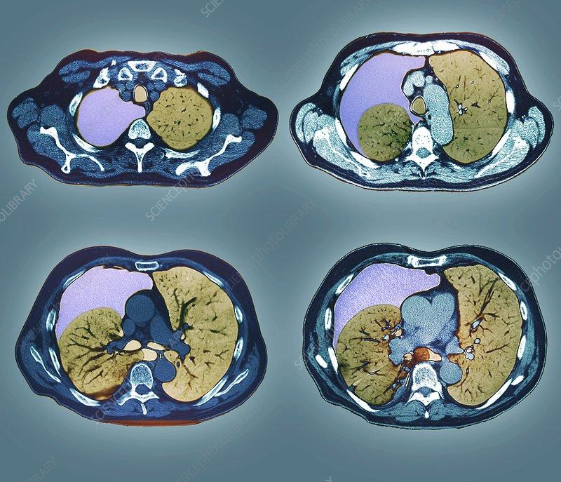 Pneumothorax, CT scan